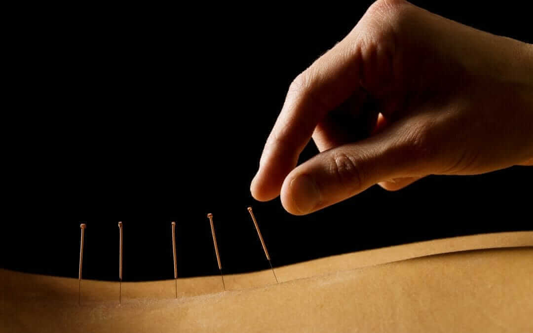 All You Need to Know About Dry Needling in Columbus, Ohio